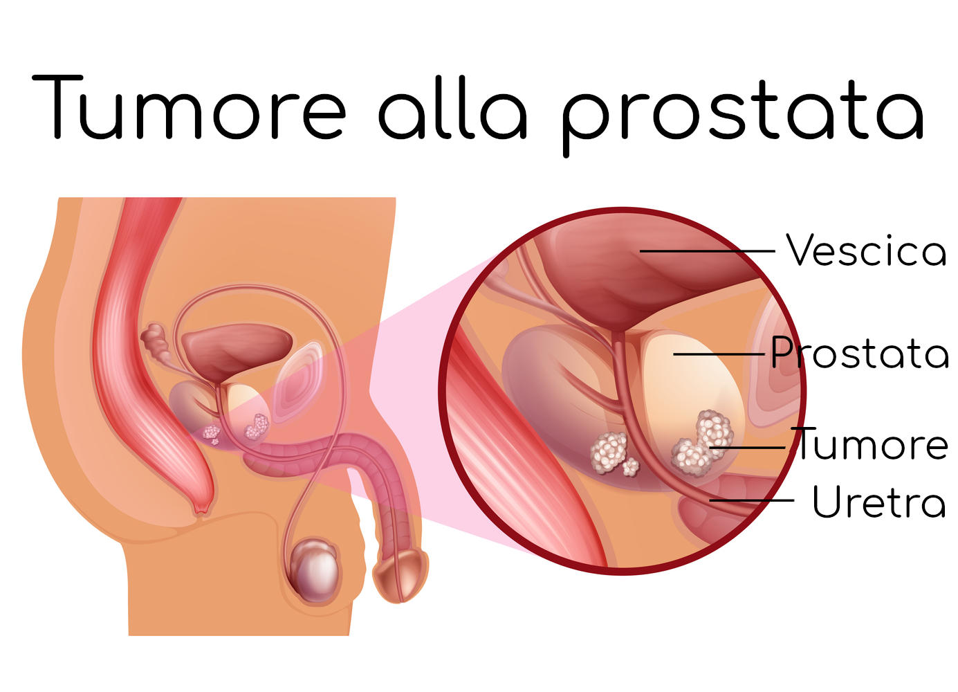 www.coma diagnosticare tumore alla prostata.it