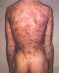 http://en.wikipedia.org/wiki/File:Syphilis_lesions_on_back.jpg