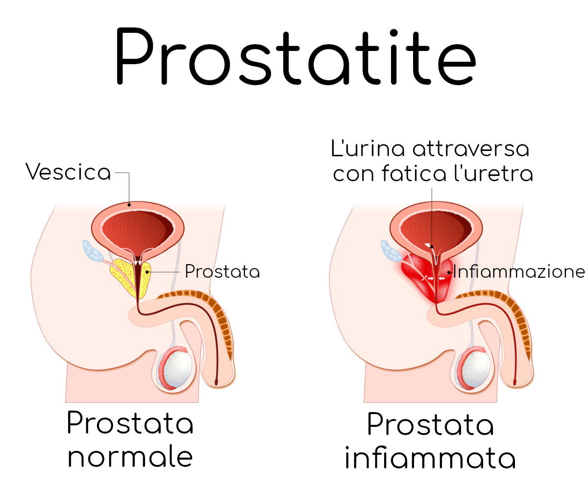 come intervenire blocco prostata urinating