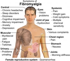 http://en.wikipedia.org/wiki/File:Symptoms_of_fibromyalgia.png