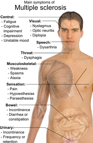 http://en.wikipedia.org/wiki/File:Symptoms_of_multiple_sclerosis.png