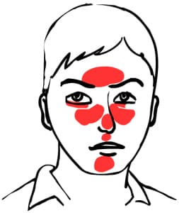 Zone colpite dalla Rosacea (http://en.wikipedia.org/wiki/File:Rasacee_couperose_zones.png)