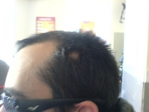 Alopecia areata (http://www.flickr.com/photos/redneck/2194805130/sizes/m/)