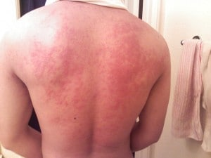 Orticaria sulla schiena (http://en.wikipedia.org/wiki/File:Hives_on_back.jpg)