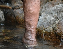 (http://commons.wikimedia.org/wiki/File:Varicose-veins_cropped.jpg)
