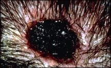 Bordo melanoma