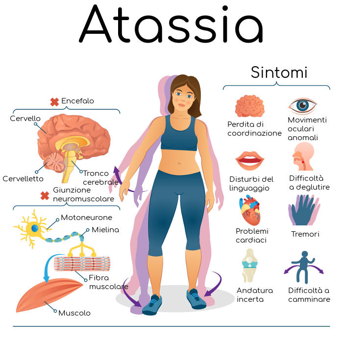 Mini-infografica dell'atassia