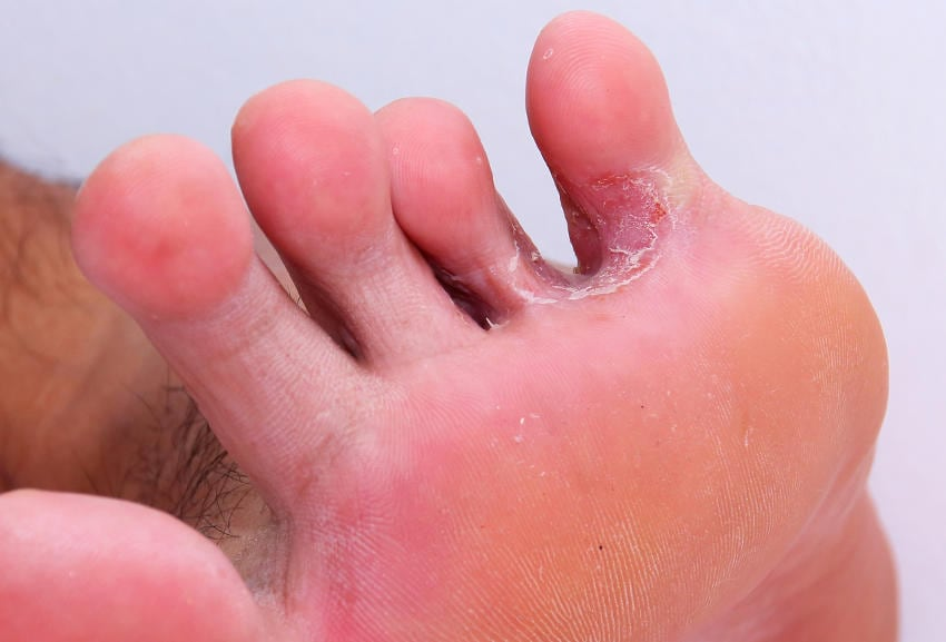 Tinea pedis interdigitale, fra le ultime due dita